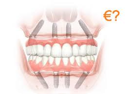 Impianto dentale: ricostruzione dente costo a Budapest, Ungheria