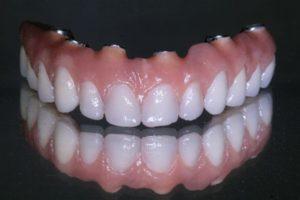 Impianti dentali costo é prezzi